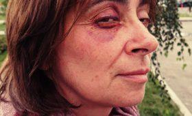На протестной акции 27 июля пострадала преподаватель из МФТИ